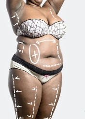 Different Types of Weight Loss Surgery