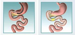 Endoluminal Sleeve