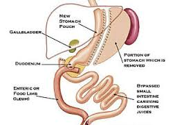 Sleeve gastrectomy with duodenal switch